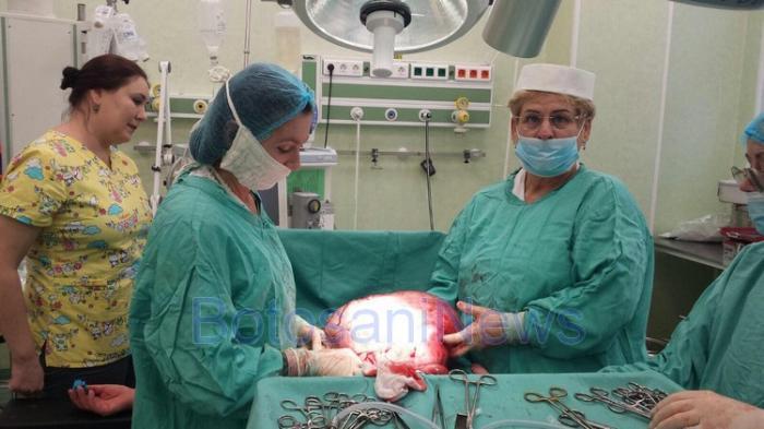 """Caz fără precedent la Maternitatea Botoşani! După ce i-au făcut ecografia, medicii au băgat-o de urgenţă în operaţie: """"Nu am mai văzut aşa ceva!"""" (FOTO)"""