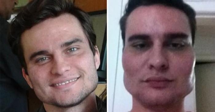 Bărbat lăsat cu chipul deformat, după o intervenție estetică