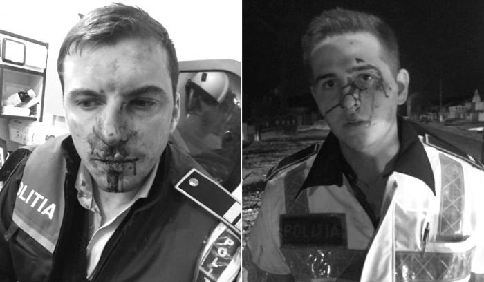Imagini cu poliţiştii bătuţi şi lăsaţi fără pistoale în Călina, Vâlcea