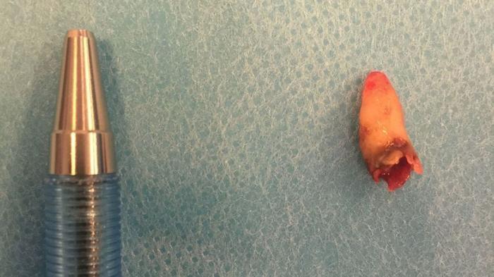 Bărbat căruia i-a crescut un dinte în nas, operat de medici