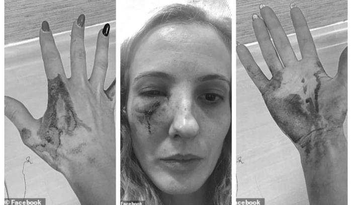 Româncă bătută în Anglia de zece tineri care au crezut că este poloneză