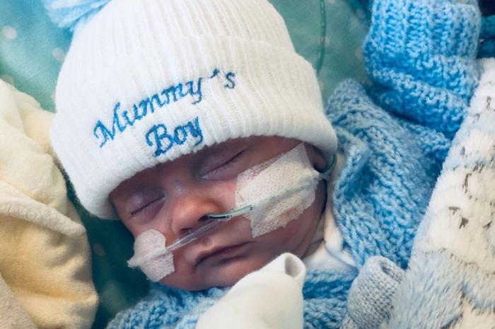 Bebelus conectat la ventilator