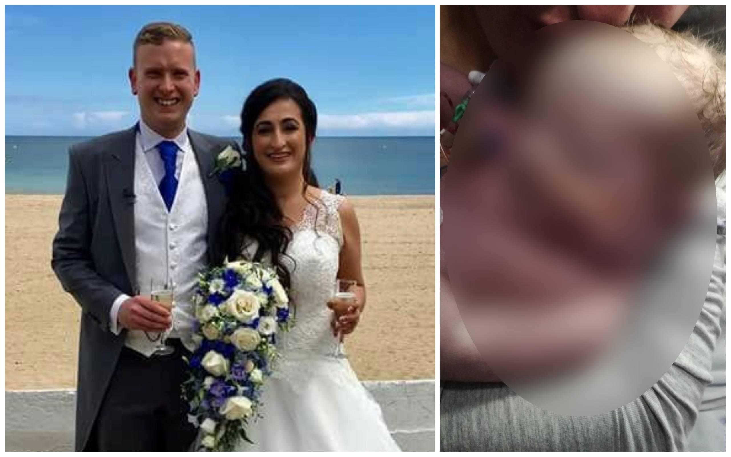 """O femeie și-a pierdut bebelușul după ce medicii i-au spus să trateze cu """"paracetamol și o baie caldă"""" sângerările din săptămâna 39 de sarcină, în Anglia"""