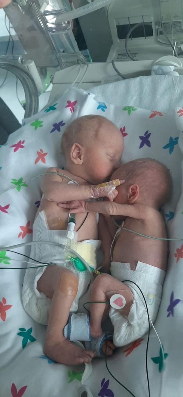 Prima îmbrățișare a unor gemeni, separați imediat după naștere. Mama era să-i piardă pe amândoi