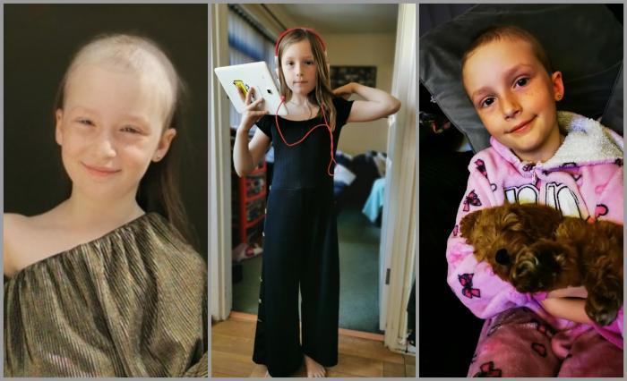 O fetiţă de opt ani, aproape cheală după ce şi-a smuls tot părul din cap, din cauza stresului provocat de covid