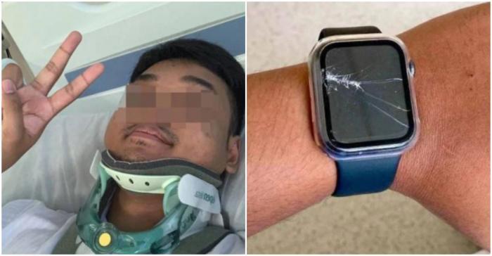 Bărbatul fusese rănit grav în accident
