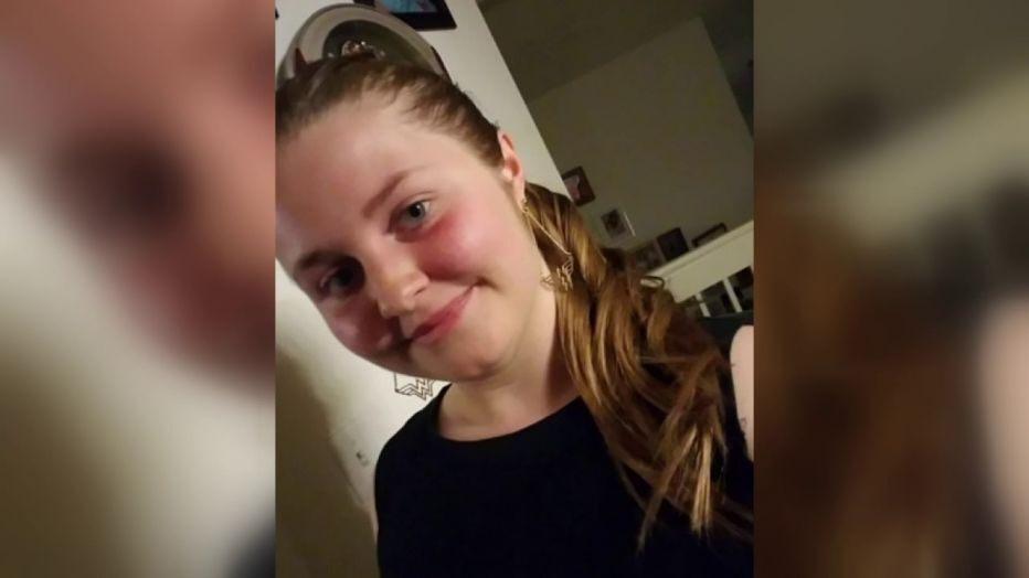 Emma Burkey a început să aibă convulsii la o săptămână după vaccinarea cu Johnson & Johnson